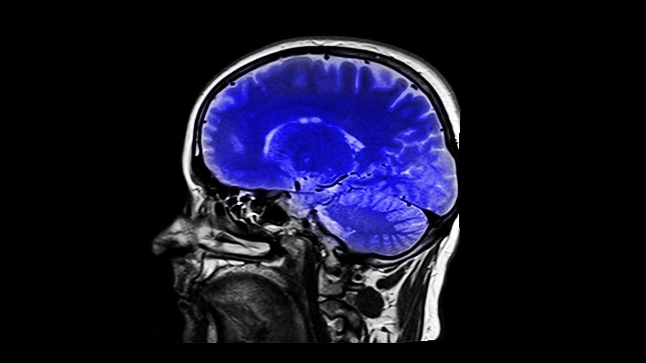 brainb-caner