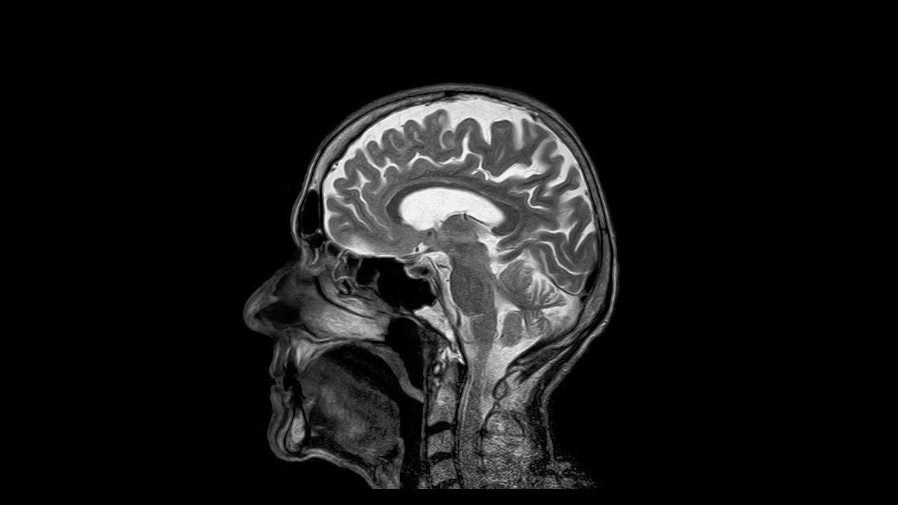 braincancer